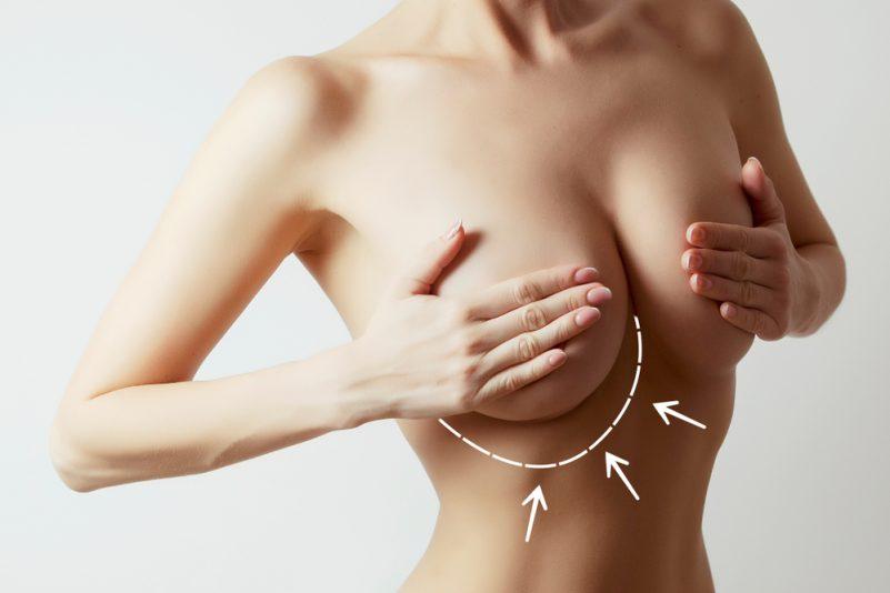自體脂肪豐胸風險多多, 請謹慎選擇