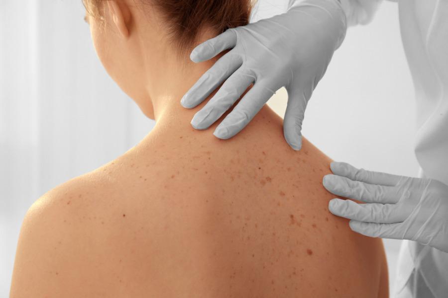 去斑疗程 - 治疗荷尔蒙斑(黄褐斑)
