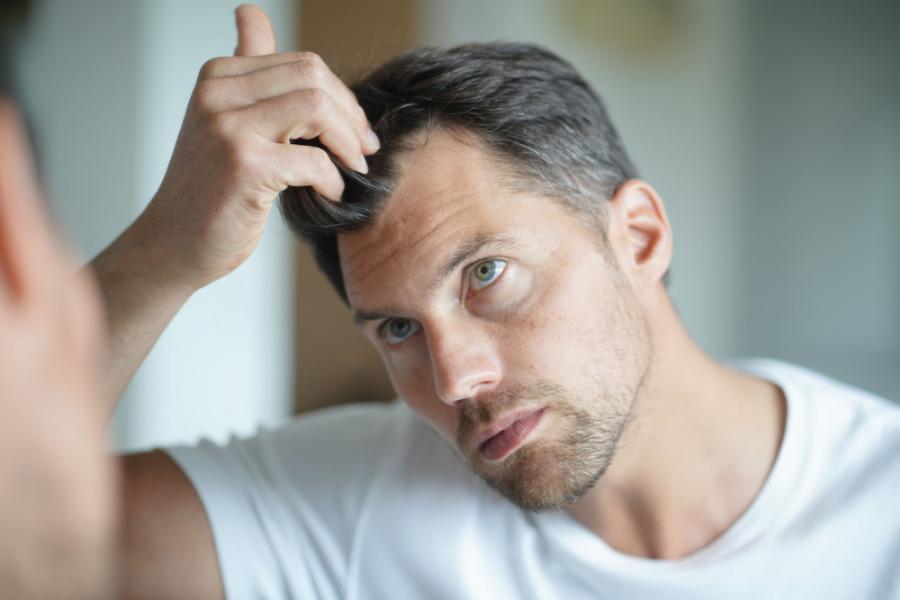 脫髮小百科-脫髮問題-2