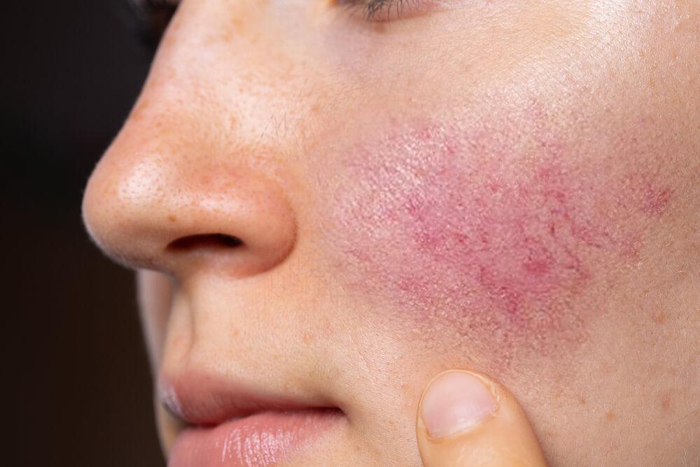 玫瑰痤瘡成因-治療及預防舒緩方法-2