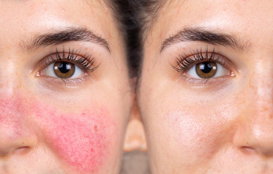 玫瑰痤瘡成因-治療及預防舒緩方法-3