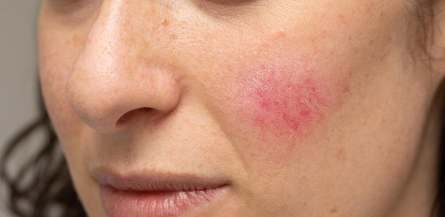 玫瑰痤瘡成因-治療及預防舒緩方法-4