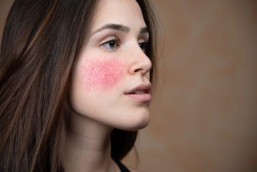 玫瑰痤瘡成因-治療及預防舒緩方法
