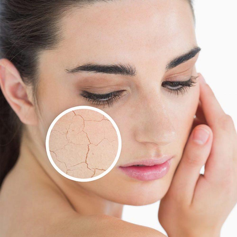 收细毛孔方法-干燥的面部