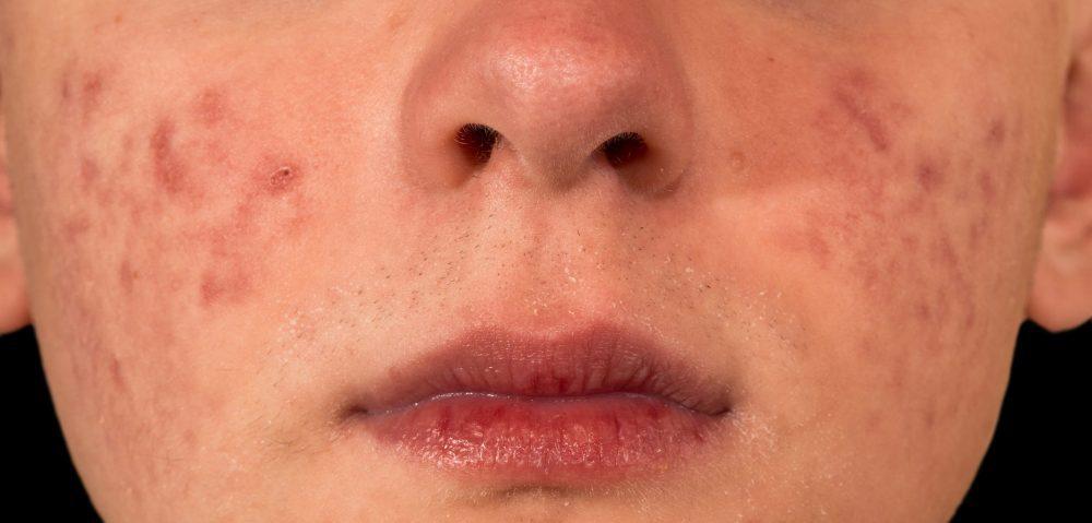 中醫暗瘡-暗瘡位置-紅腫的暗瘡