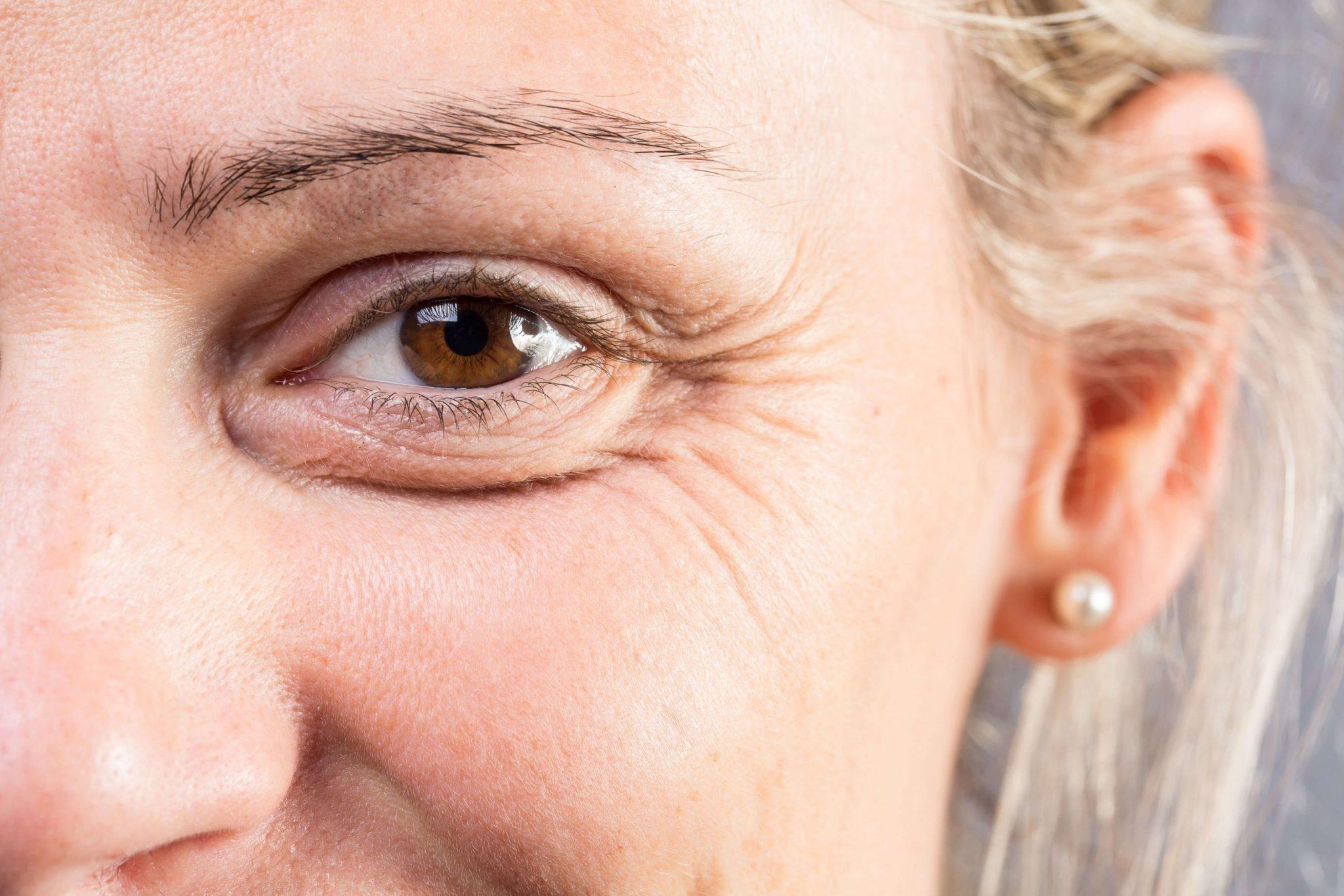 皺紋懶人包-皺紋成因-如何去皺紋-法令紋-魚尾紋
