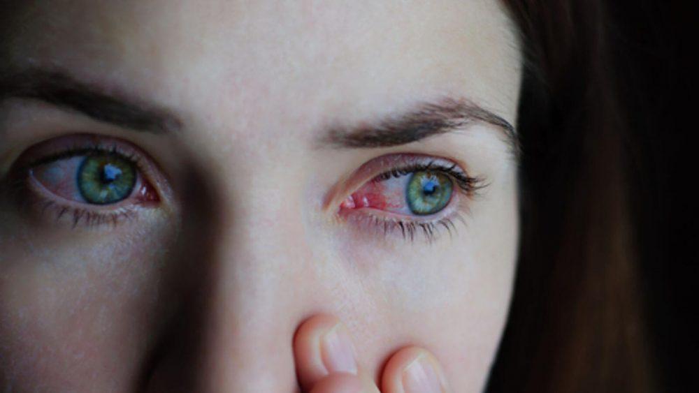 有效去黑眼圈方法-眼睛过敏的人