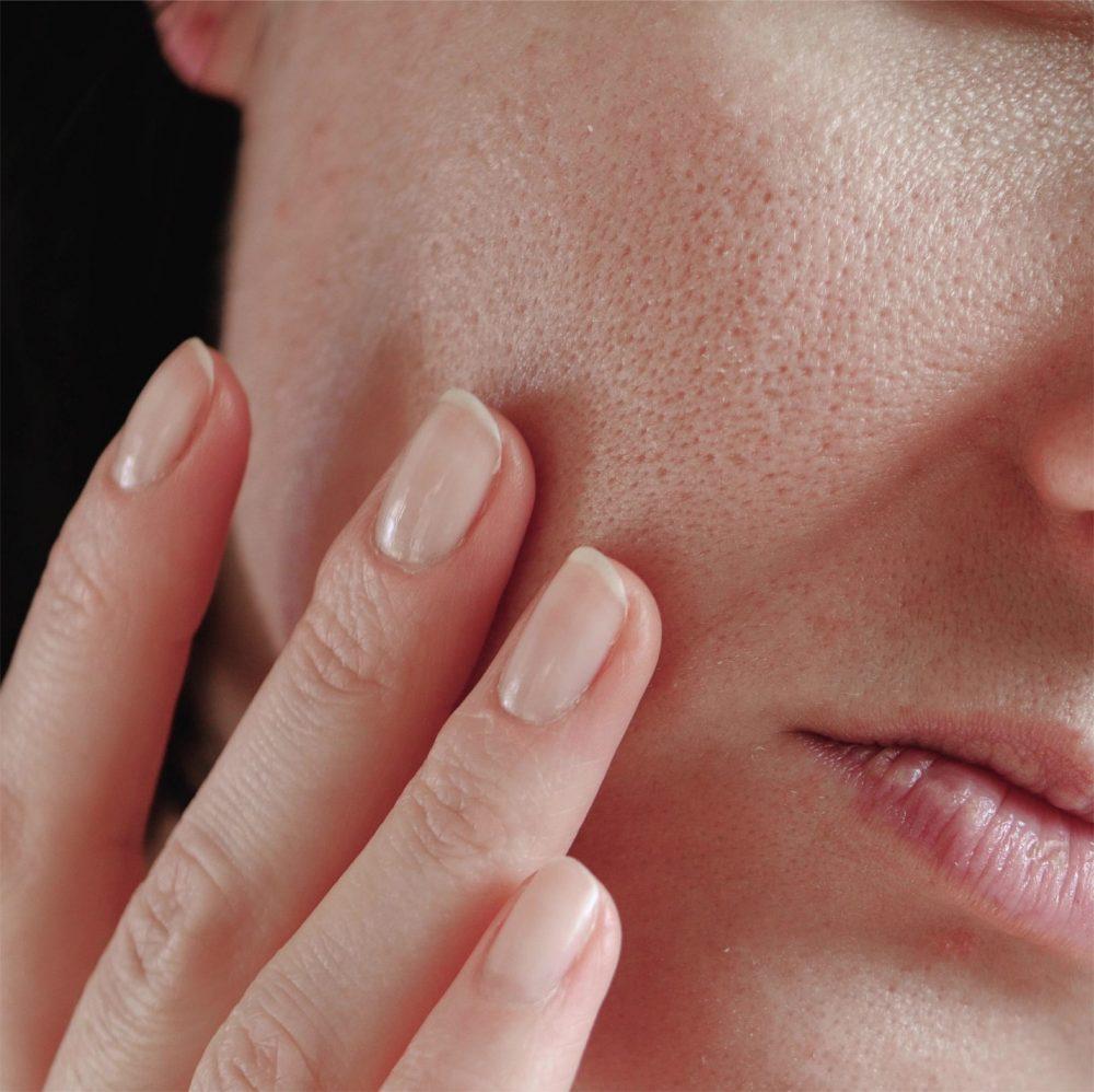 收細毛孔方法-粗大毛孔的面部