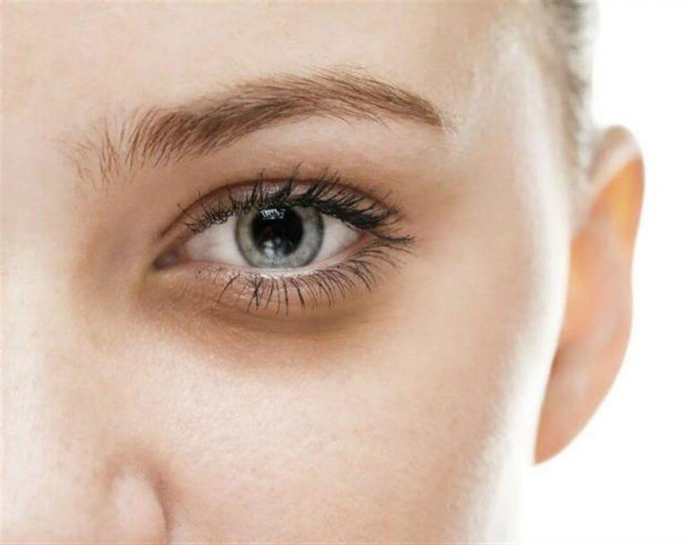 黑眼圈类型-结构型黑眼圈