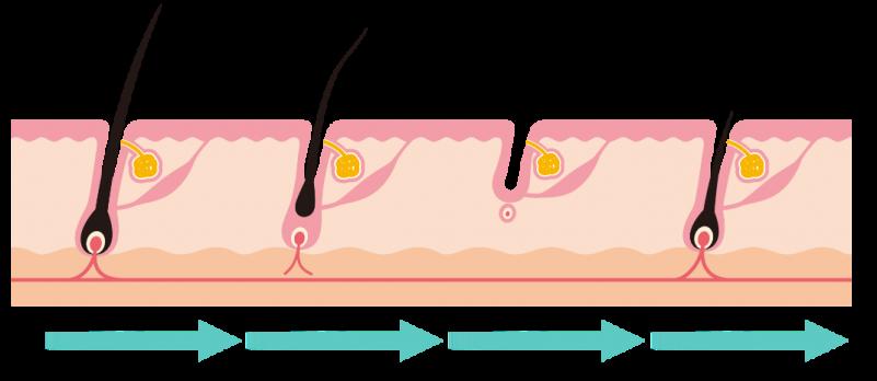 产后脱发-头发生长的3个阶段