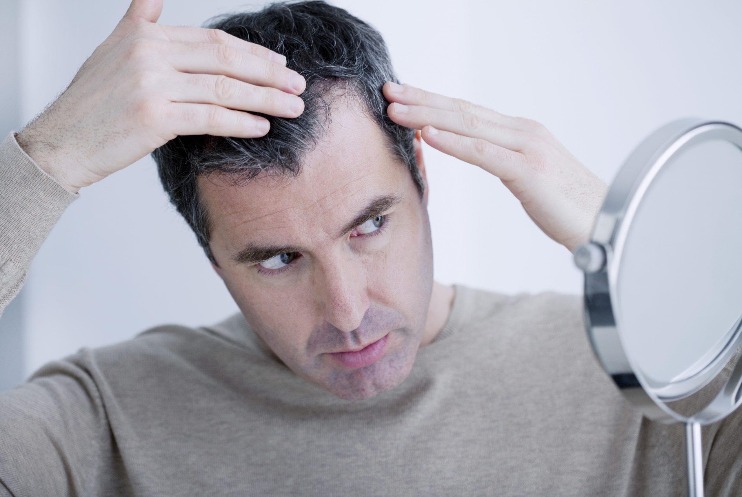 你有受M字額脫髮困擾嗎, 不妨先了解M字額成因