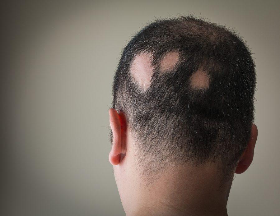 你知道鬼剃头的成因吗-分享斑秃的治疗方法