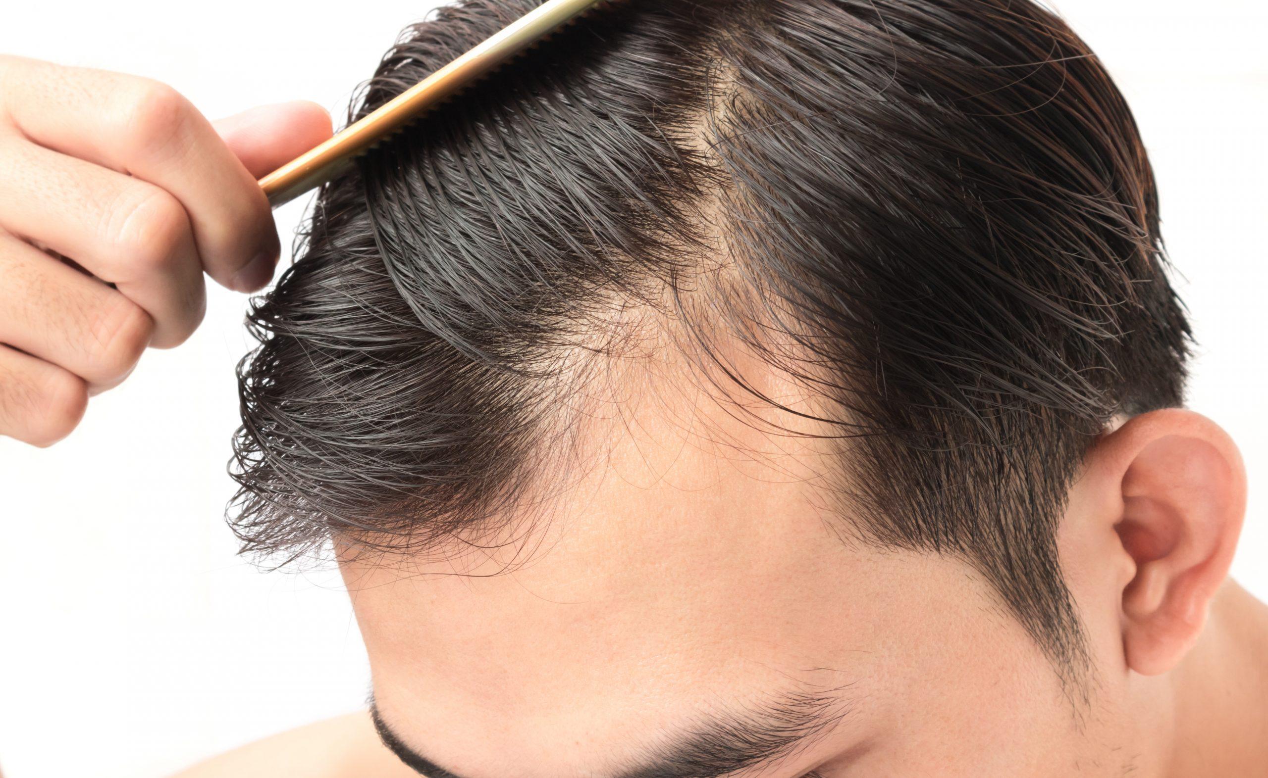 頭髮變幼不能忽視, 可以成為脫髮的主要原因