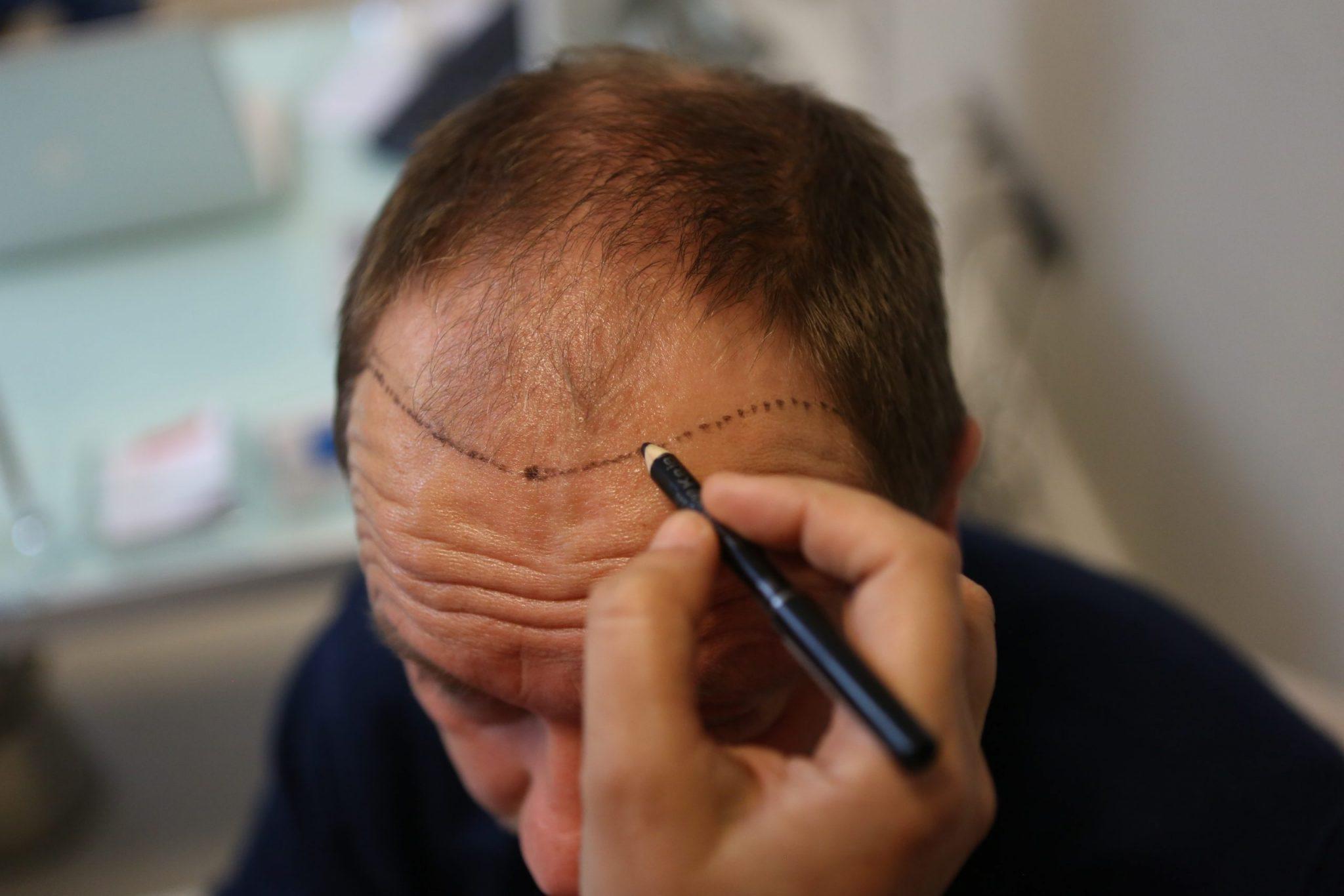 植髮療程的第二步:設計預期效果