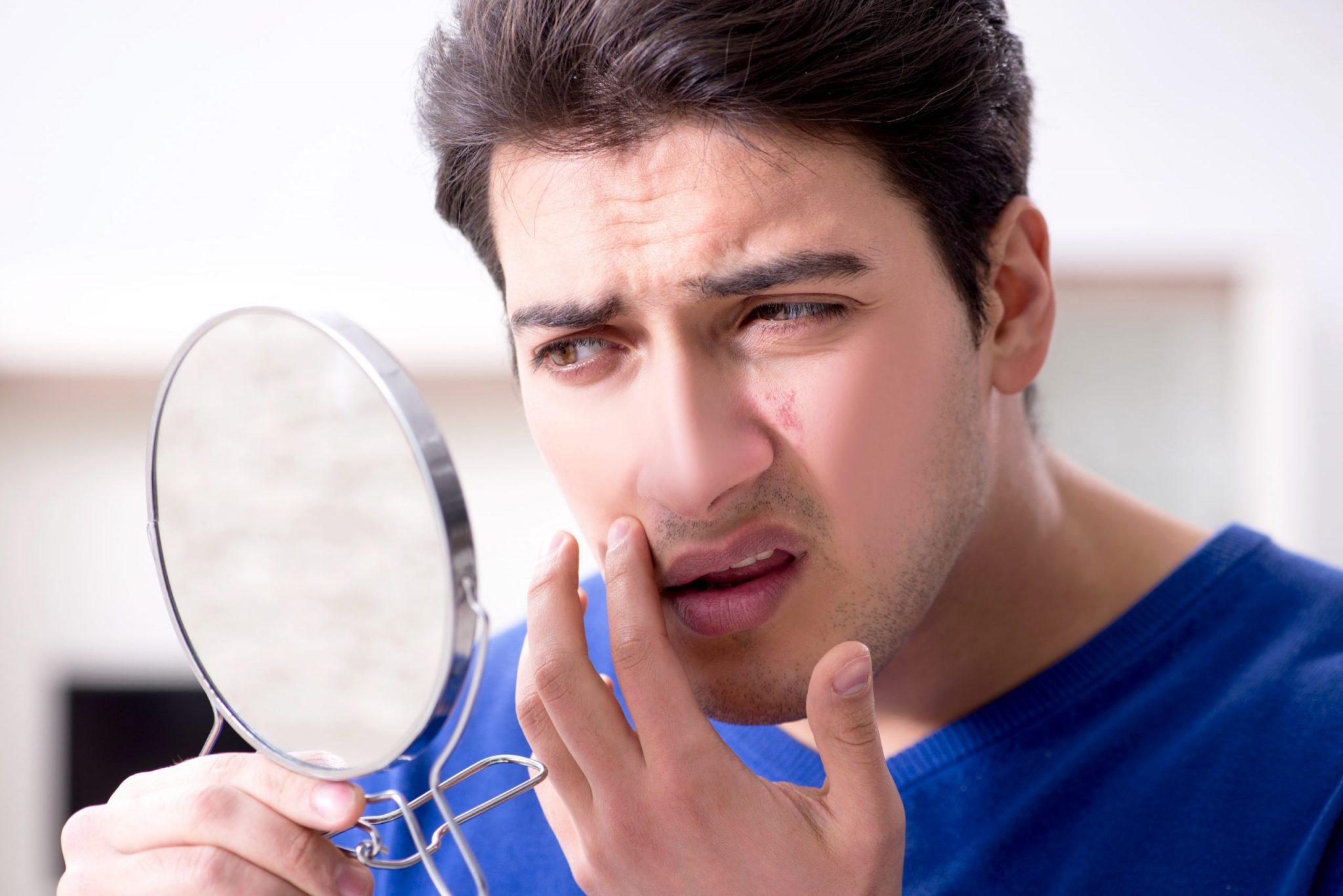 又腫又痛又難消退的石頭瘡應如何處理-分析急救方法+石頭瘡療程