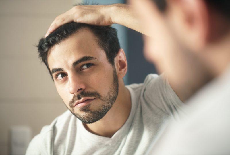 食生髮藥物前不妨先了解脫髮原因