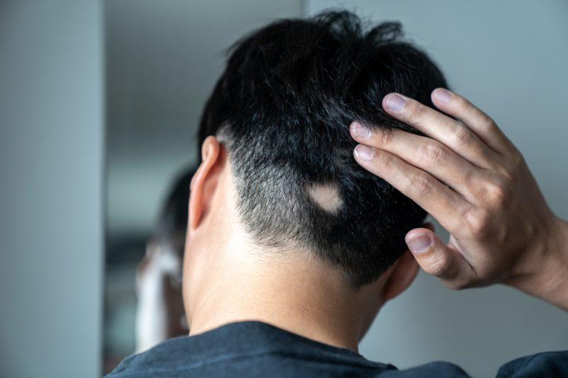 斑秃或鬼剃头与一般脱发有什么不同