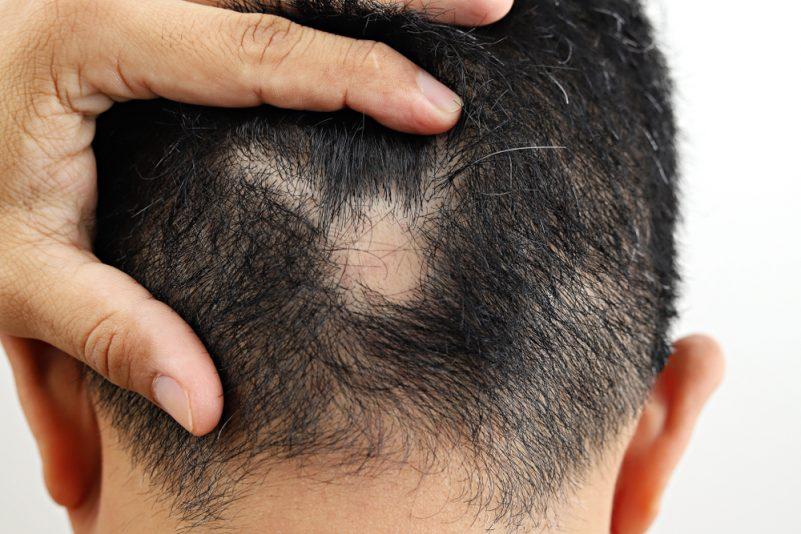 鬼剃头不及早治疗有机会导致全部头发脱光
