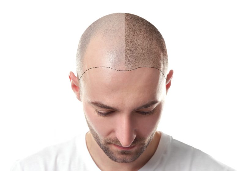 植髮的原理是甚麼