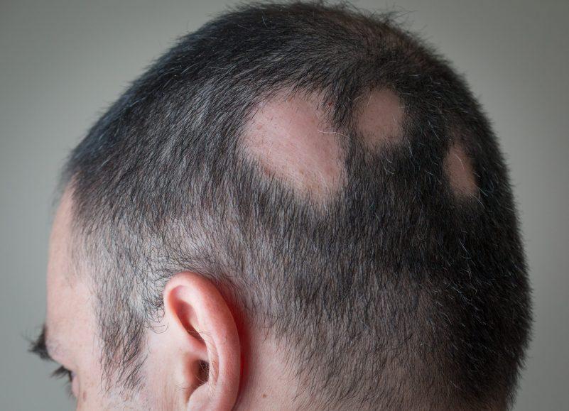 鬼剃頭有甚麼特徵