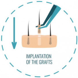 植发疗程的第五步:种发