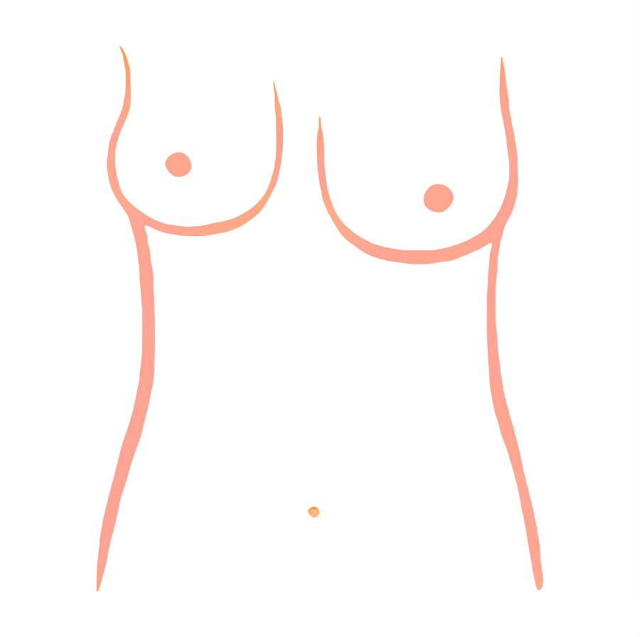 大细胸的类型有先天性及后天影响