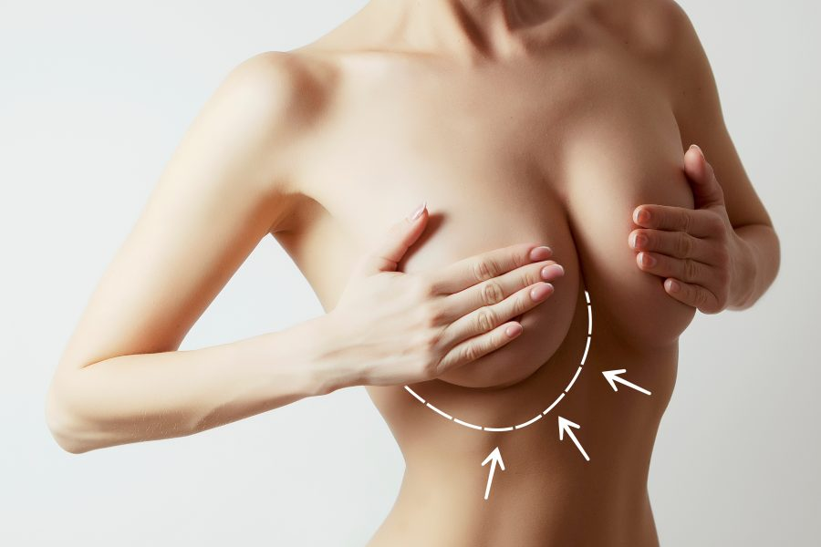 全方位提升胸部, 教你有效改善胸部下垂方法