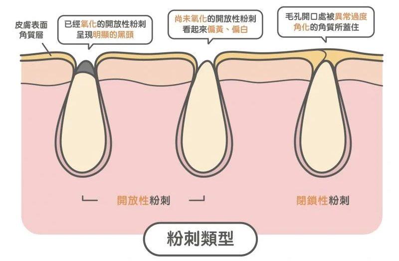 粉刺類型:開放性粉刺及閉合性粉刺