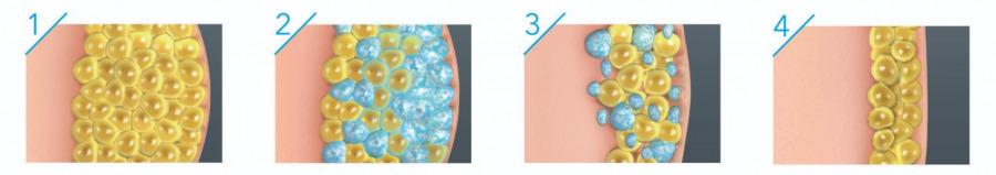 冷凍溶脂原理是甚麼?