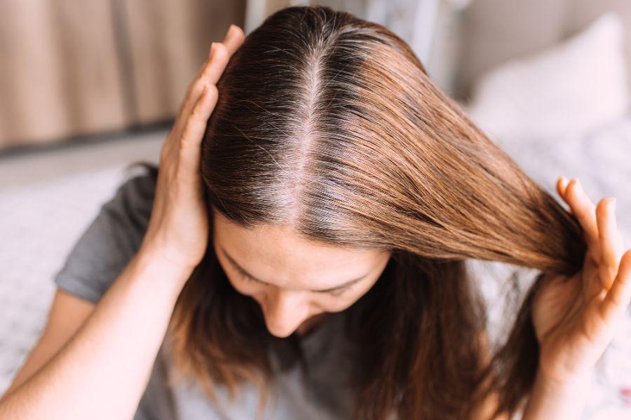 女性禿頭的3個階段