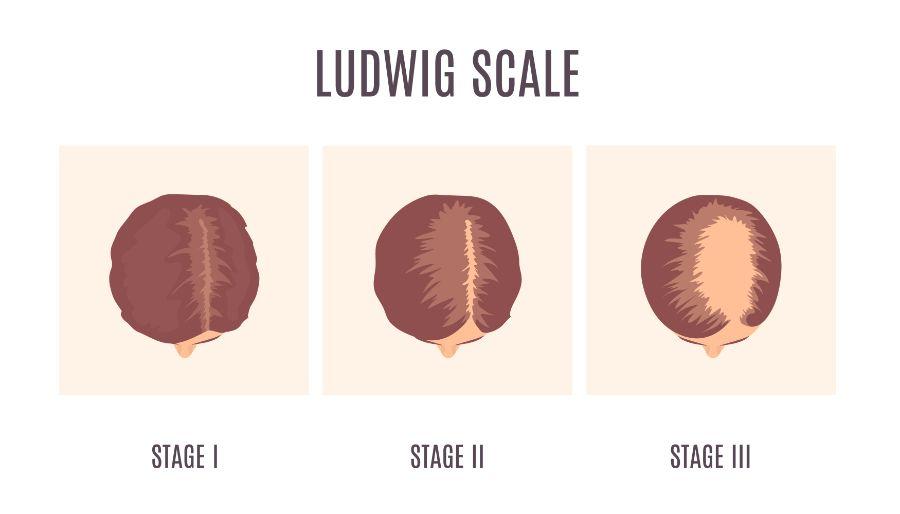 女性脱发分级