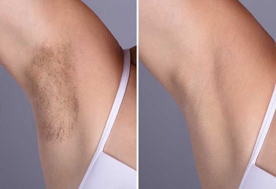 腋下變黑原因2. 荷爾蒙變化